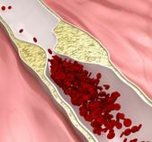 Atherosclerosis-disease---plague-blocking-blood-flow